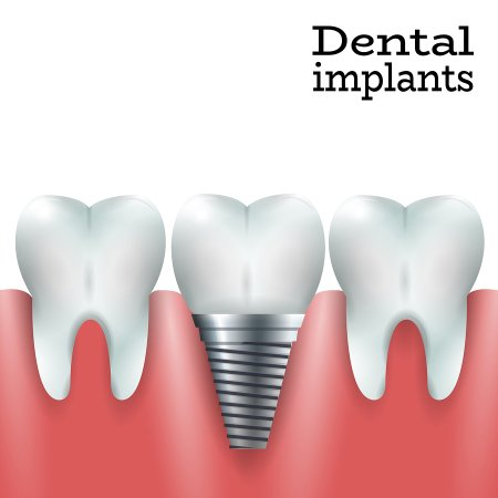Dental implants near Damascus